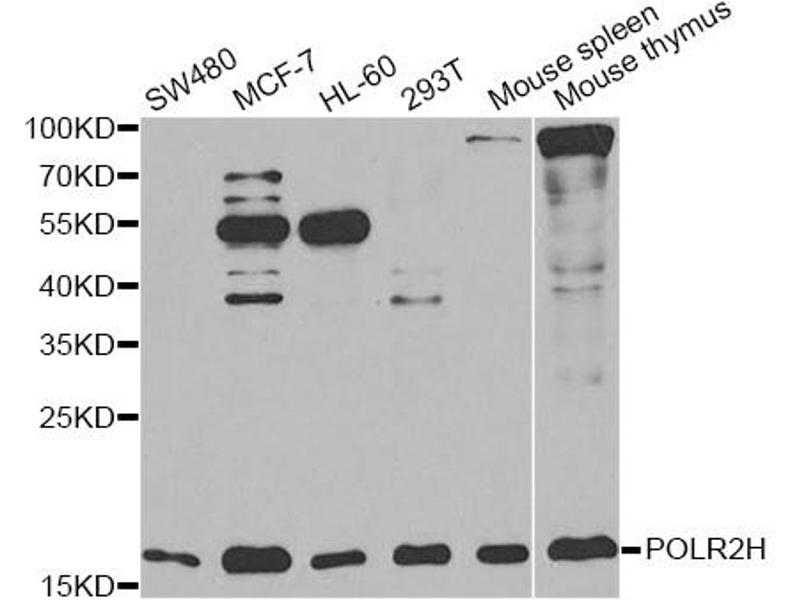 Image no. 3 for anti-Polymerase (RNA) II (DNA Directed) Polypeptide H (POLR2H) antibody (ABIN6567889)