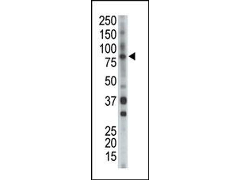 image for anti-BMX antibody (BMX Non-Receptor Tyrosine Kinase) (Middle Region) (ABIN359973)