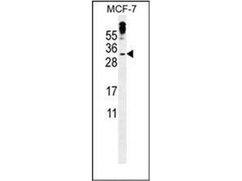Western Blotting (WB) image for anti-Methyl-CpG Binding Domain Protein 3-Like 3 (MBD3L3) (AA 163-192), (C-Term) antibody (ABIN953335)