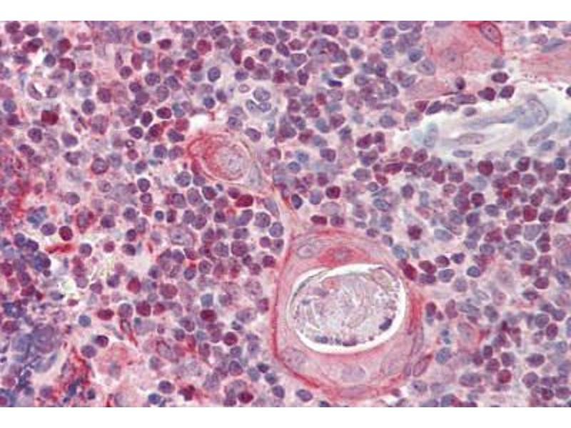 image for anti-SATB Homeobox 1 (SATB1) (AA 668-681) antibody (ABIN1493900)