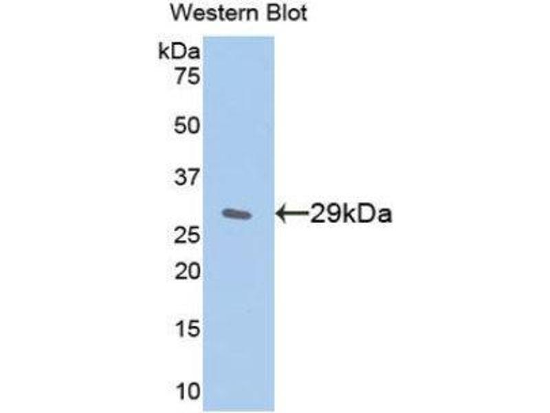 Western Blotting (WB) image for anti-Nuclear Factor of kappa Light Polypeptide Gene Enhancer in B-Cells Inhibitor, epsilon (NFKBIE) (AA 207-440) antibody (ABIN1859320)