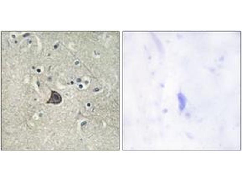 Immunohistochemistry (IHC) image for anti-phospholipase C, beta 3 (Phosphatidylinositol-Specific) (PLCB3) (pSer537), (AA 503-552) antibody (ABIN1531468)