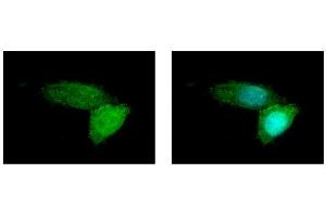 Image no. 1 for anti-ATP-Binding Cassette, Sub-Family B (MDR/TAP), Member 11 (ABCB11) (Internal Region) antibody (ABIN2855437)