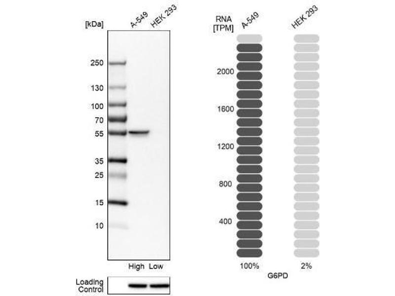 Western Blotting (WB) image for anti-Glucose-6-Phosphate Dehydrogenase (G6PD) antibody (ABIN4314534)