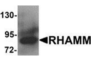Image no. 1 for anti-Hyaluronan-Mediated Motility Receptor (RHAMM) (HMMR) (N-Term) antibody (ABIN783397)