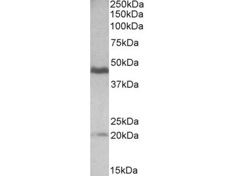 Western Blotting (WB) image for anti-GATA3 antibody (GATA Binding Protein 3) (ABIN2435784)