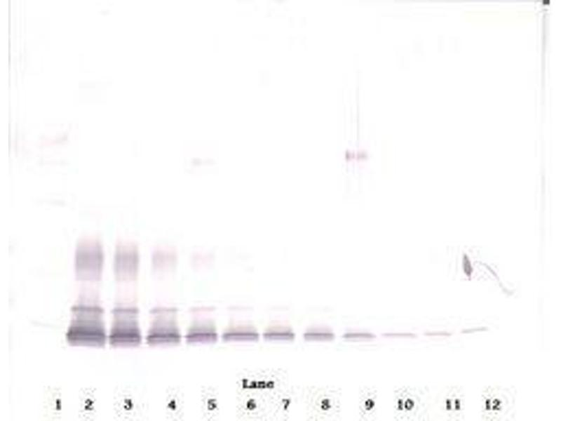 image for anti-PDGFB antibody (Platelet-Derived Growth Factor beta Polypeptide) (ABIN465589)