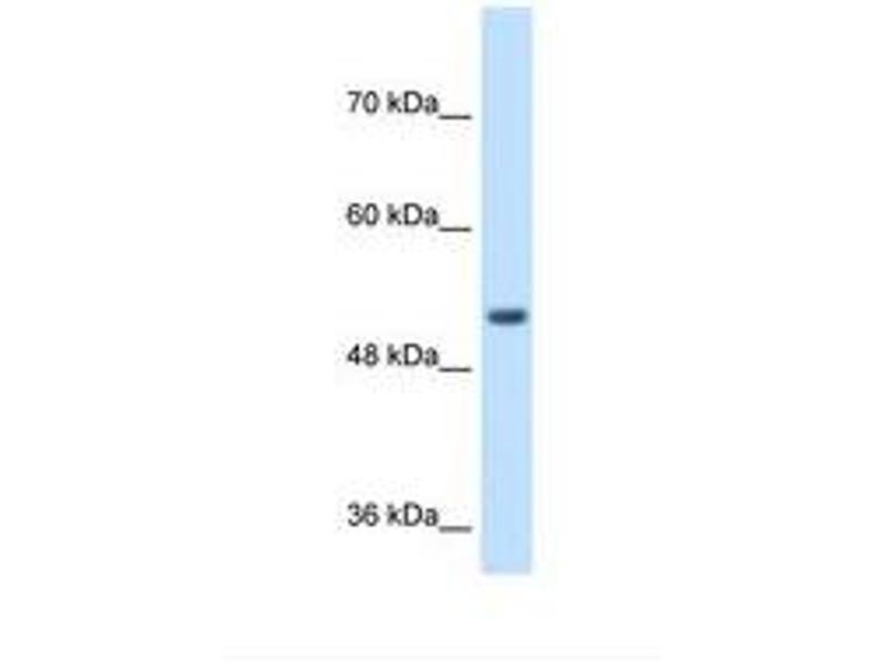 image for anti-Signal Peptide Peptidase-Like 2B (SPPL2B) (AA 93-142) antibody (ABIN320903)
