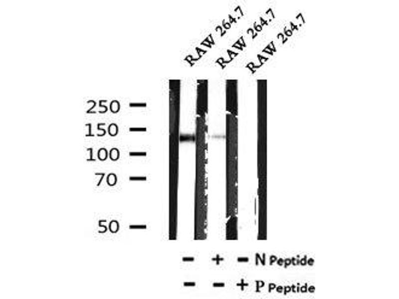 Image no. 4 for anti-TBC1 Domain Family, Member 4 (TBC1D4) (pSer341) antibody (ABIN6269677)