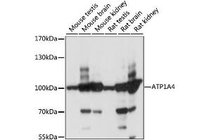 Image no. 1 for anti-ATPase, Na+/K+ Transporting, alpha 4 Polypeptide (ATP1A4) antibody (ABIN6568617)