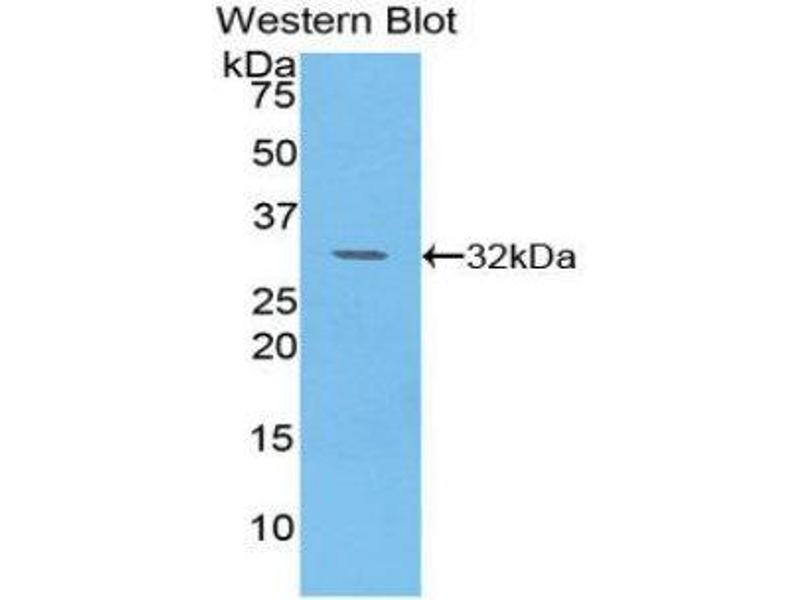 Western Blotting (WB) image for anti-Pyruvate Dehydrogenase Kinase, Isozyme 4 (PDK4) (AA 73-316) antibody (ABIN1860174)