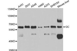 Image no. 1 for anti-D Site of Albumin Promoter (Albumin D-Box) Binding Protein (DBP) antibody (ABIN6718407)