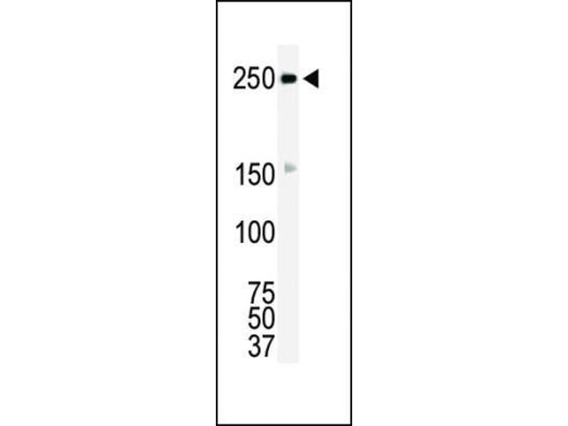 Western Blotting (WB) image for anti-C-Ros Oncogene 1 , Receptor tyrosine Kinase (ROS1) (N-Term) antibody (ABIN4350969)