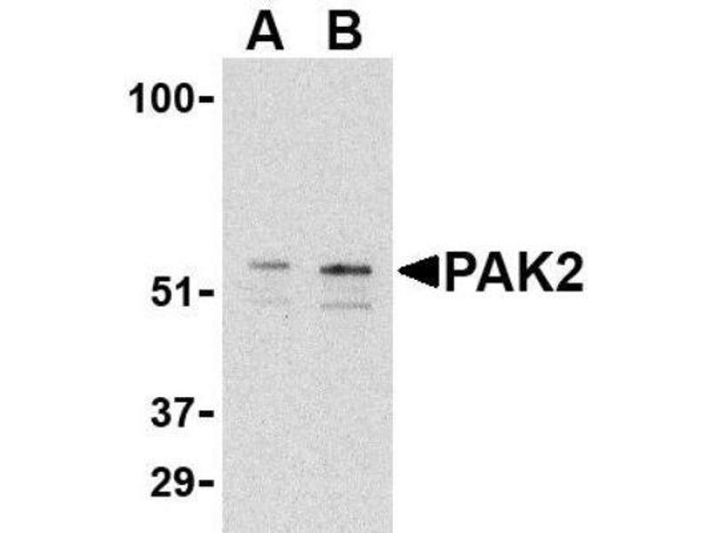 Western Blotting (WB) image for anti-P21-Activated Kinase 2 (PAK2) (C-Term) antibody (ABIN4343470)