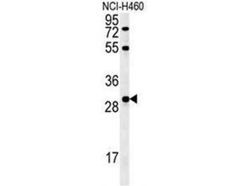 Western Blotting (WB) image for anti-Fibroblast Growth Factor 2 (Basic) (FGF2) (AA 37-66), (Middle Region) antibody (ABIN952306)