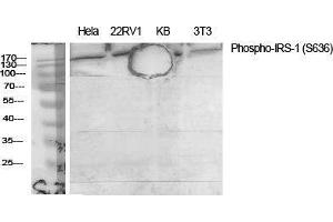 Image no. 4 for anti-Insulin Receptor Substrate 1 (IRS1) (pSer636) antibody (ABIN3182047)