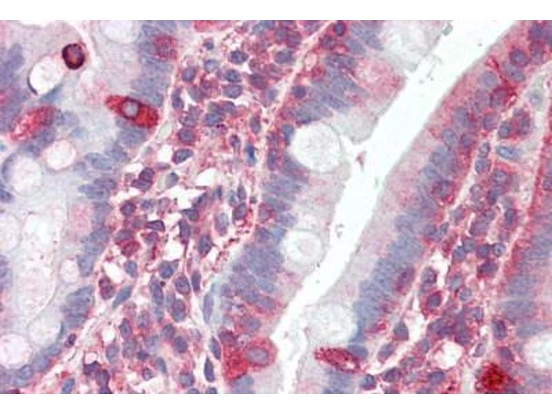 Immunohistochemistry (Paraffin-embedded Sections) (IHC (p)) image for anti-Tripartite Motif Containing 5 (TRIM5) (C-Term) antibody (ABIN461889)