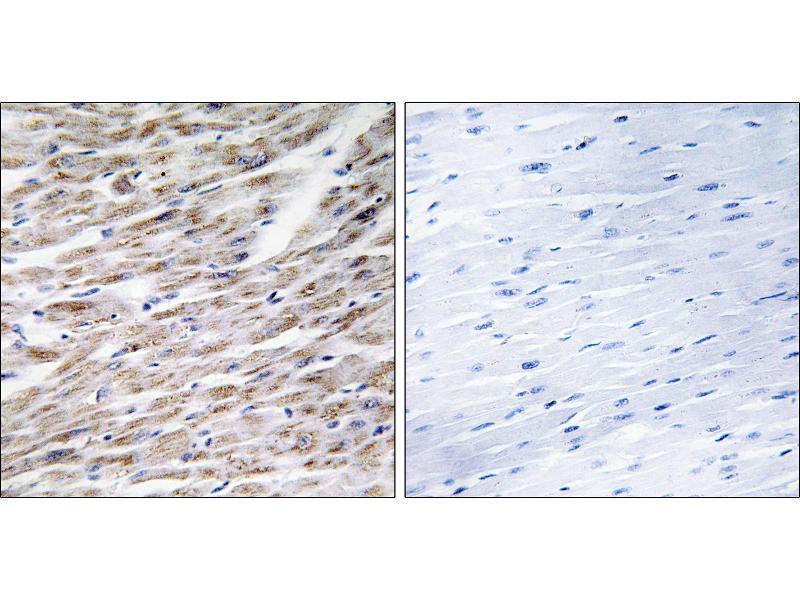 Immunohistochemistry (IHC) image for anti-GZMA antibody (Granzyme A (Granzyme 1, Cytotoxic T-Lymphocyte-Associated serine Esterase 3)) (ABIN2438229)