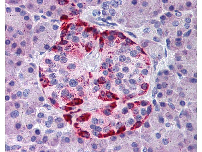 Immunohistochemistry (IHC) image for anti-EPH Receptor A2 (EPHA2) (AA 450-500) antibody (ABIN291771)
