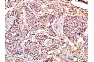 Immunohistochemistry (Paraffin-embedded Sections) (IHC (p)) image for anti-MAP1A antibody (Microtubule-Associated Protein 1A) (AA 2475-2520) (ABIN735308)