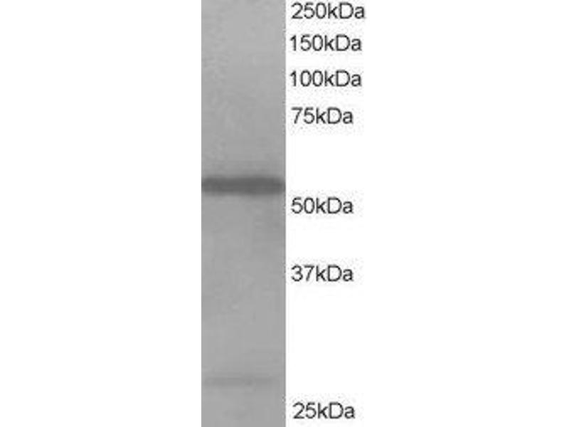 Western Blotting (WB) image for anti-DBNL antibody (Drebrin-Like) (N-Term) (ABIN2563044)