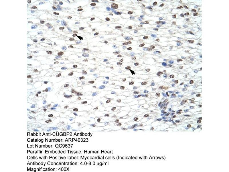 Immunohistochemistry (IHC) image for anti-CUGBP, Elav-Like Family Member 2 (CELF2) (N-Term) antibody (ABIN183930)