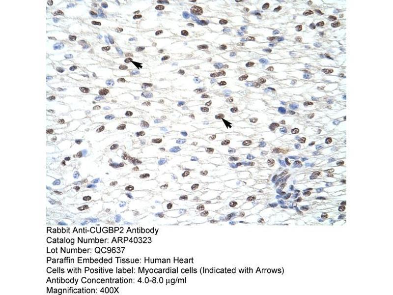 Immunohistochemistry (IHC) image for anti-CUGBP, Elav-Like Family Member 2 (CELF2) (N-Term) antibody (ABIN183930)
