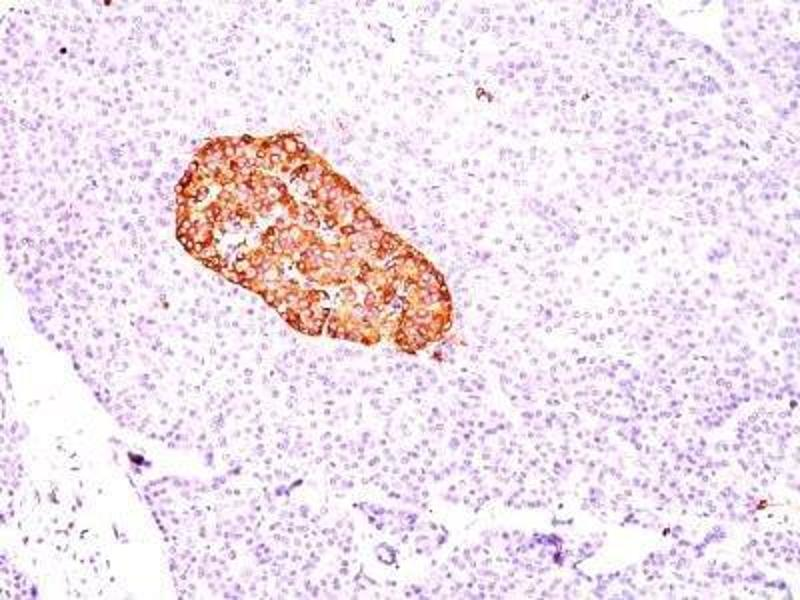 Immunohistochemistry (Paraffin-embedded Sections) (IHC (p)) image for anti-Chromogranin A (CHGA) antibody (ABIN4298360)