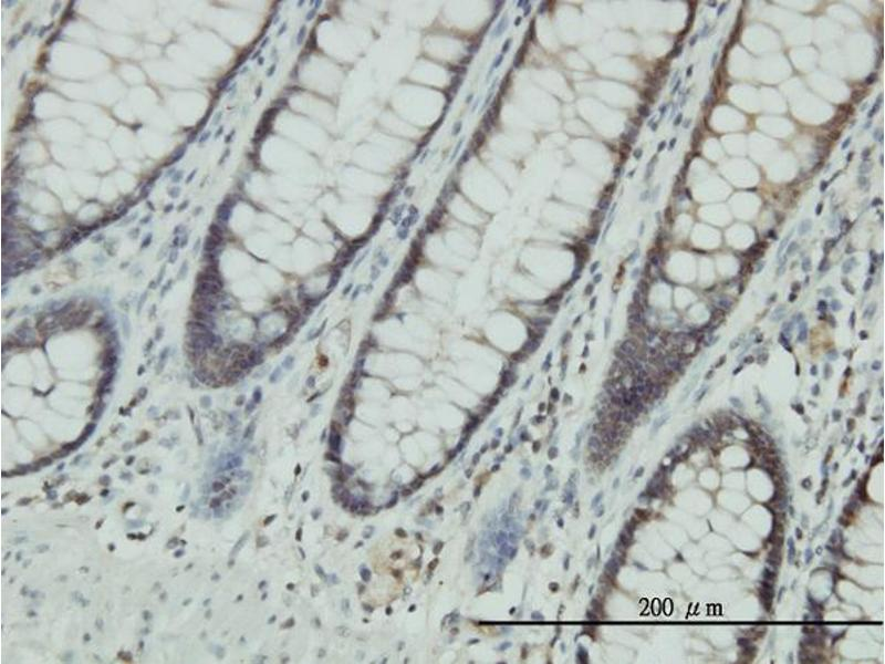 Immunostaining (ISt) image for anti-Chloride Intracellular Channel 1 (CLIC1) (AA 1-241), (full length) antibody (ABIN560404)