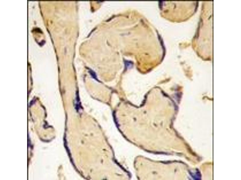 Immunohistochemistry (Paraffin-embedded Sections) (IHC (p)) image for anti-EPH Receptor A3 (EPHA3) (C-Term) antibody (ABIN359793)