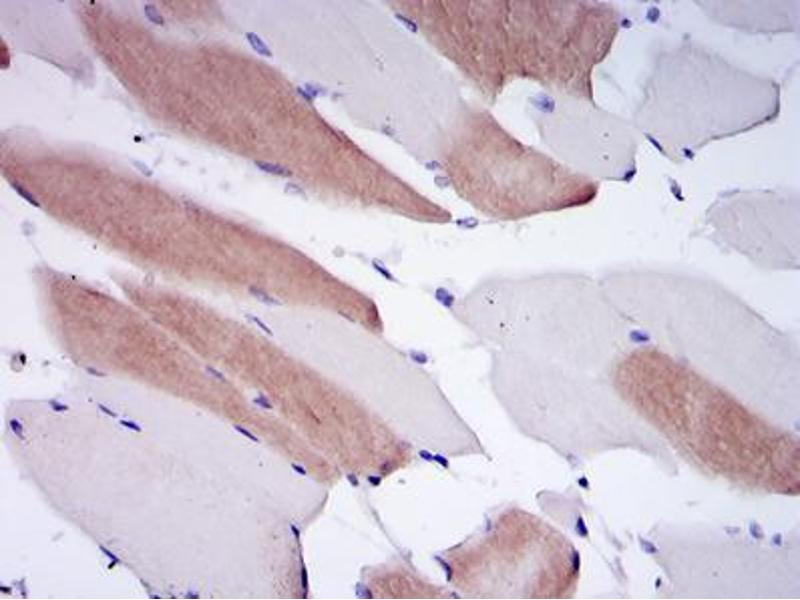 Immunohistochemistry (IHC) image for anti-Lamin A/C (LMNA) antibody (ABIN969260)