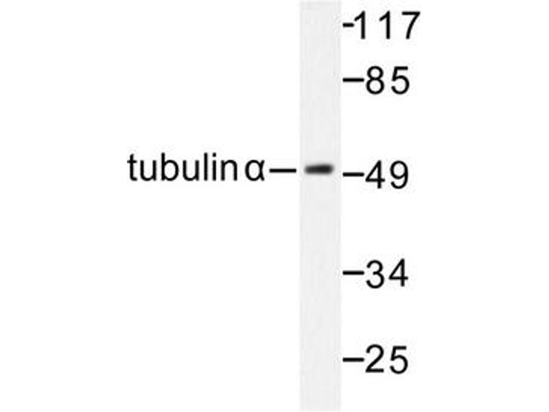 image for anti-TUBA1B Antikörper (Tubulin, alpha 1B) (ABIN272103)