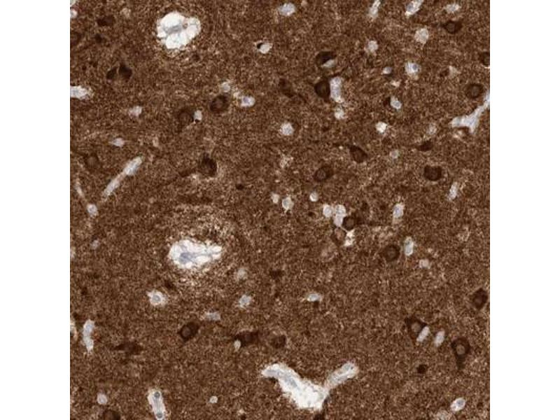 Immunohistochemistry (IHC) image for anti-Calcium/calmodulin-Dependent Protein Kinase (CaM Kinase) II beta (CAMK2B) antibody (ABIN4287584)