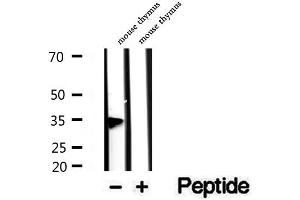 Image no. 2 for anti-PHD Finger Protein 11 (PHF11) antibody (ABIN6264172)