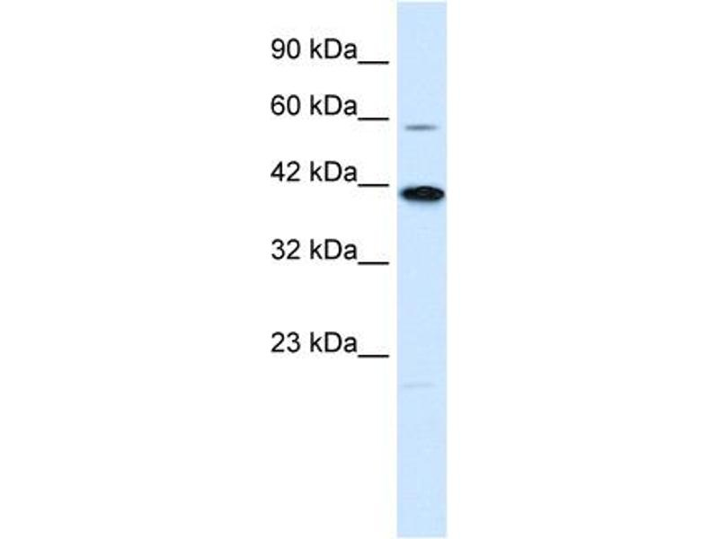 Western Blotting (WB) image for anti-Potassium Channel Subfamily K Member 13 (KCNK13) (C-Term) antibody (ABIN2776250)