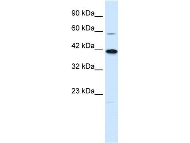 Western Blotting (WB) image for anti-Potassium Channel Subfamily K Member 13 (KCNK13) (C-Term) antibody (ABIN2776250)