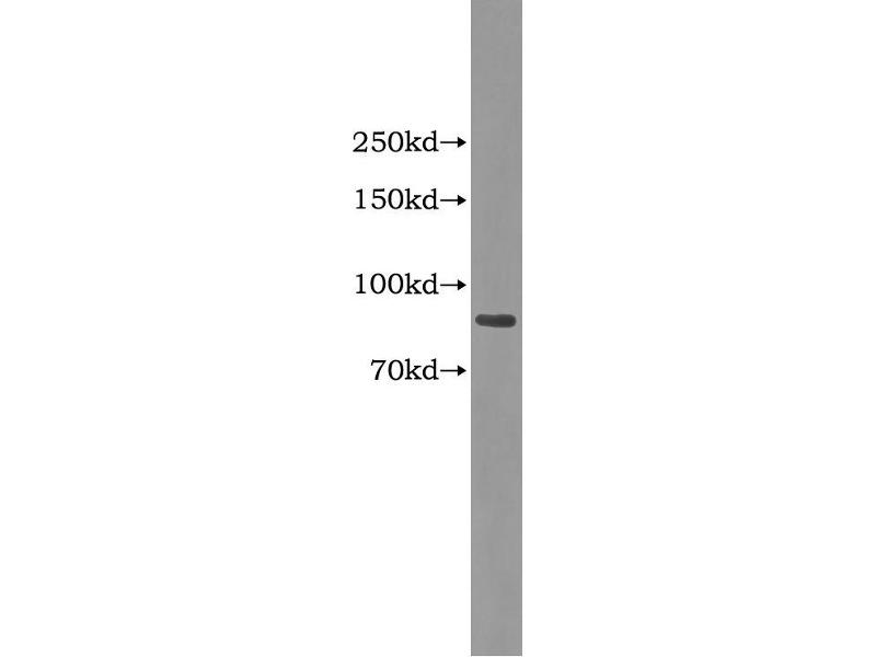 Complement Factor B (CFB) ELISA Kit (4)