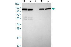 Image no. 2 for anti-Zinc Finger CCCH-Type, Antiviral 1 (ZC3HAV1) antibody (ABIN5591180)