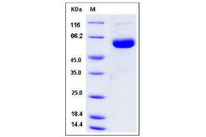 Image no. 1 for UL16 Binding Protein 2 (ULBP2) (AA 1-217) protein (Fc Tag) (ABIN2005067)