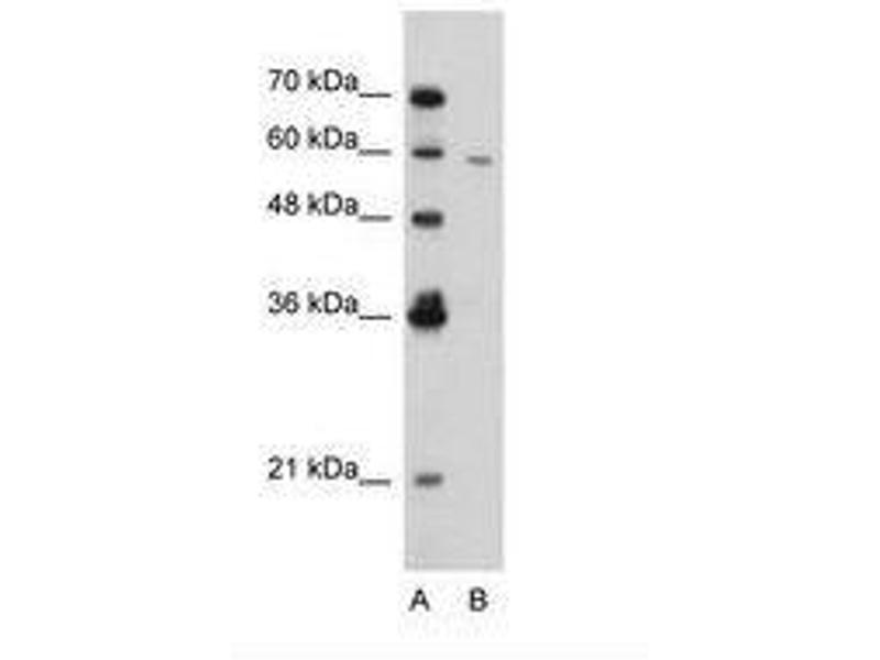 image for anti-Receptor-Interacting serine-threonine Kinase 3 (RIPK3) (AA 168-217) antibody (ABIN203367)