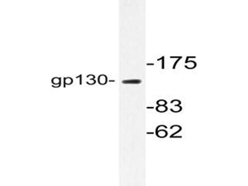image for anti-IL6ST Antikörper (Interleukin 6 Signal Transducer (Gp130, Oncostatin M Receptor)) (ABIN272005)