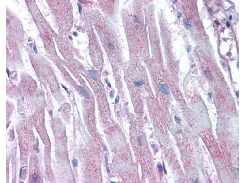 Immunohistochemistry (IHC) image for anti-Actin Related Protein 2/3 Complex, Subunit 1B, 41kDa (ARPC1B) (Center) antibody (ABIN2855610)