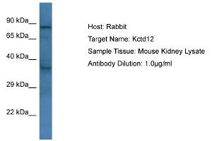 Image no. 1 for anti-Potassium Channel Tetramerisation Domain Containing 12 (KCTD12) (C-Term) antibody (ABIN2776278)