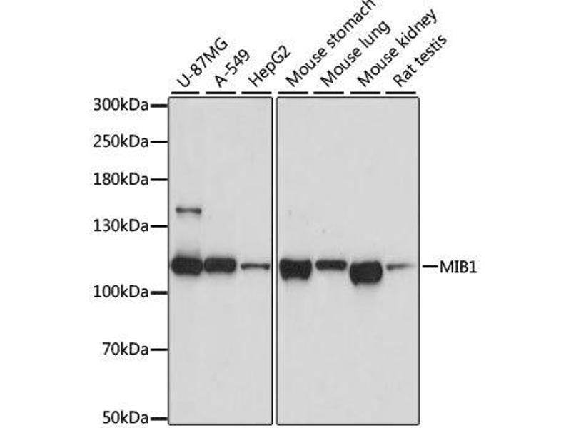 Image no. 1 for anti-Mindbomb E3 Ubiquitin Protein Ligase 1 (MIB1) antibody (ABIN6143827)