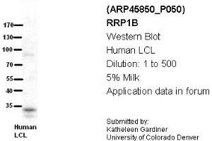 Image no. 2 for anti-Ribosomal RNA Processing 1 Homolog B (S. Cerevisiae) (RRP1B) (Middle Region) antibody (ABIN405769)