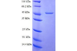 Image no. 1 for Fibroblast Growth Factor 10 (FGF10) (AA 38-208) protein (GST tag) (ABIN5709519)