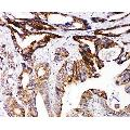 anti-DCC antibody (Deleted in Colorectal Carcinoma) (AA 162-178)