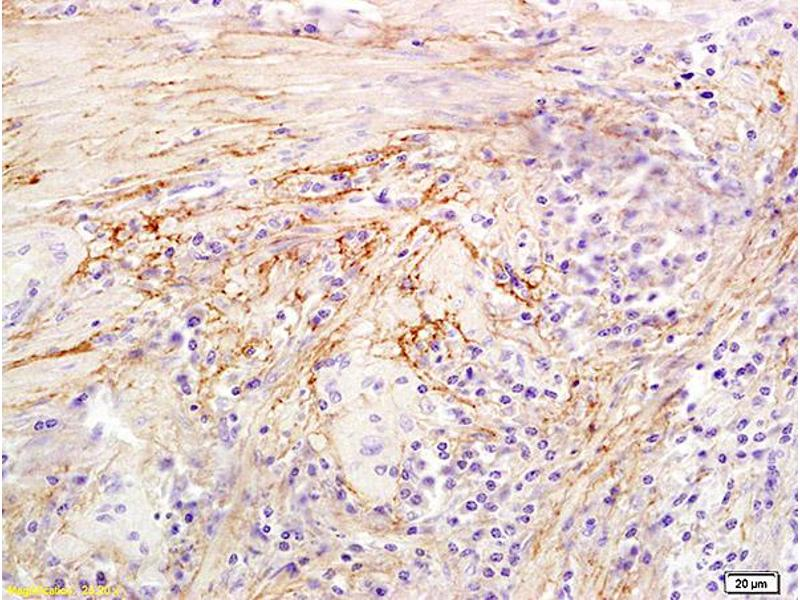 Immunohistochemistry (IHC) image for anti-Hyaluronidase-1 (HYAL1) (AA 270-320) antibody (ABIN673779)