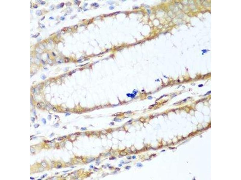 Immunohistochemistry (Paraffin-embedded Sections) (IHC (p)) image for anti-Non-Muscle Myosin Heavy Polypeptide 9 (MYH9) antibody (ABIN5663599)