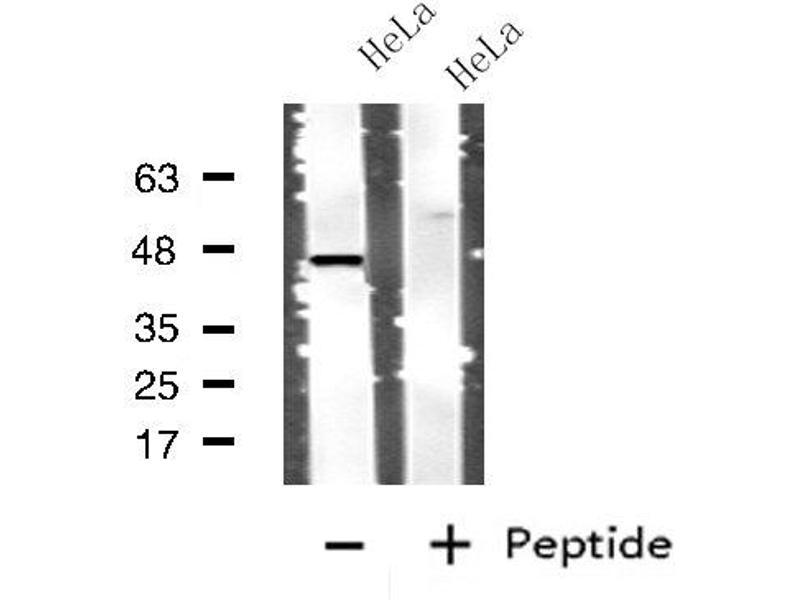 Western Blotting (WB) image for anti-Cathepsin D (CTSD) antibody (ABIN6257007)